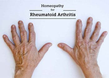 HOMEOPATHY FOR RHEUMATOID ARTHRITIS